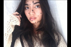 woman covered in moles