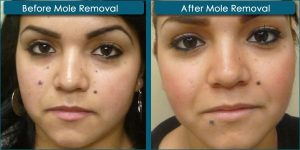 nevi-skin-before-after-mole-removal