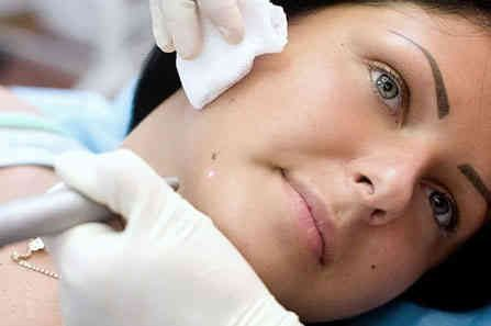 How To Remove Moles Permanent Features Amp Mole Removal