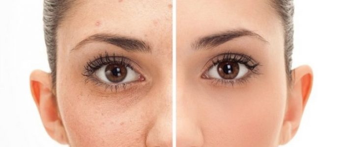 BEFORE AND AFTER REMOVE MOLES